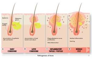 patogenesi dellacne - come si forma il brufolo